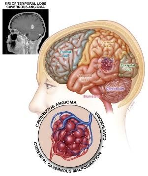 Illustration: Ett cavernöst angiom är ett hallon-formade abnormt blodkärl med tunna, läckande väggar som finns mestadels i hjärnan och ryggmärgen